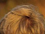 cara-mengatasi-rambut-rontok